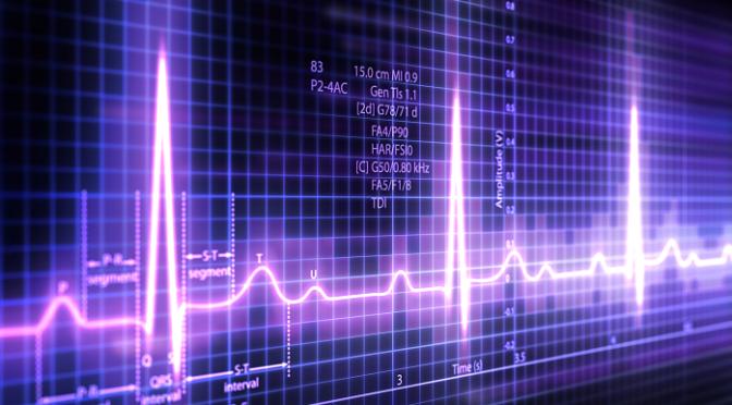 Erledigt Apple nun auch EKG-Hersteller?